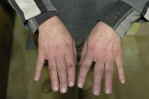 hurting-hands.jpg